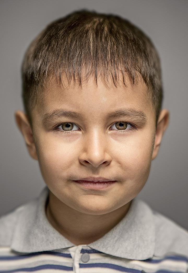 Аллергия у ребенка на памперсы фото лечение