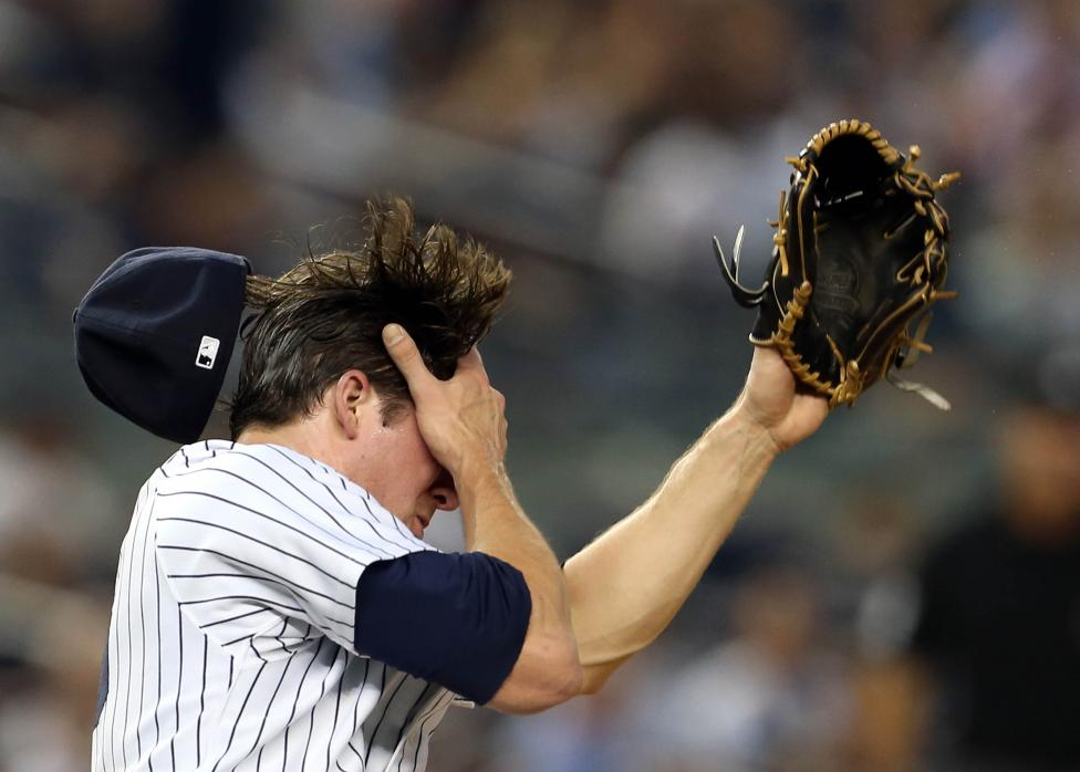 New York Yankees starting pitcher Bryan Mitchell reacts after being hit in the face by a ball against the Minnesota Twins at Yankee Stadium, August 17, 2015. Adam Hunger-USA TODAY Sports