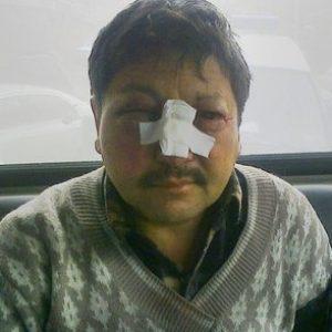 После нападения. Фото - Informburo.kz