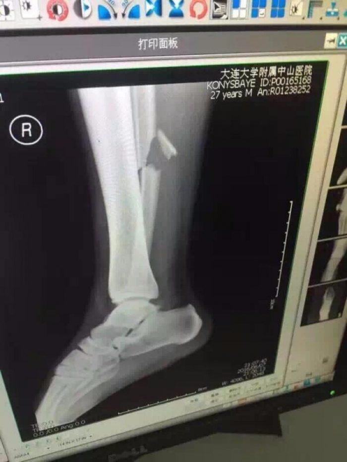 Рентгеновский снимок ноги Конысбаева. Источник - vesti.kz