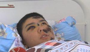 Аман Аженов, пострадавший солдат