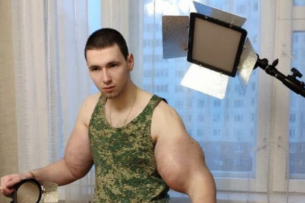 "2ebadd26eb2487cdee40768bd52cc253 600x400 - ""Hands-Bazooka"" lost his famous biceps"